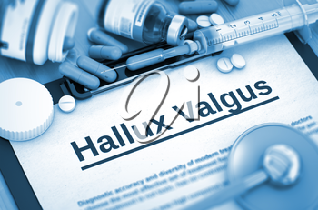 Hallux Valgus, Medical Concept with Selective Focus. Hallux Valgus - Printed Diagnosis with Blurred Text. Hallux Valgus, Medical Concept with Pills, Injections and Syringe. 3D. Toned Image.