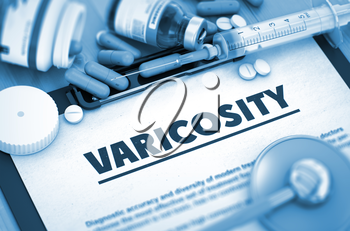 Varicosity, Medical Concept with Selective Focus. Varicosity - Printed Diagnosis with Blurred Text. 3D. Toned Image.