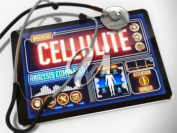 Cellulite - Diagnosis on the Display of Medical Tablet and a Black Stethoscope on White Background.