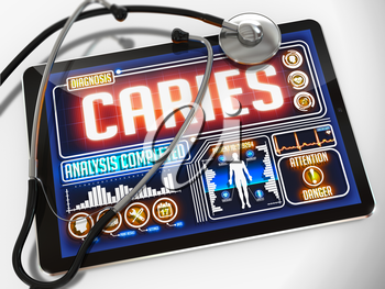 Caries - Diagnosis on the Display of Medical Tablet and a Black Stethoscope on White Background.