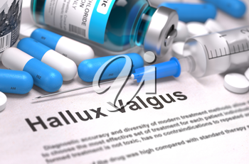 Hallux Valgus - Printed Diagnosis with Blurred Text. On Background of Medicaments Composition - Blue Pills, Injections and Syringe.