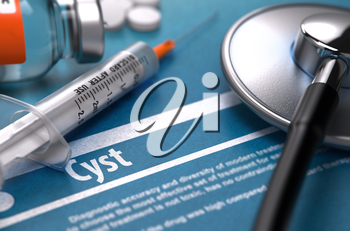 Cyst - Printed Diagnosis on Blue Background and Medical Composition - Stethoscope, Pills and Syringe. Medical Concept. Blurred Image.