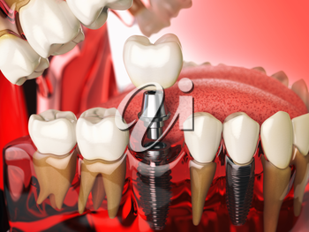 Tooth implant in the model human teeth, gums and denturas. Dental medicine stomatology concept. 3d illustration
