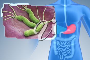 Helicobacter Pylori is a Gram-negative, microaerophilic bacterium found in the stomach. 3D illustration