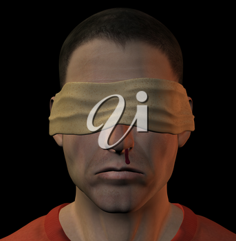 Tortured blindfolded man with bleeding nose. 3d illustration.